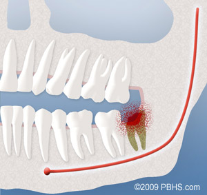 After Wisdom Tooth Removal Ny Oral Facial Surgery